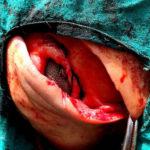 Nylon Mess in Hernial ring Repair in Cow