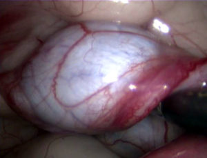 Retained Testicle in Abdomen